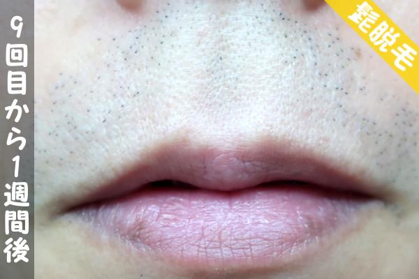 脱毛器ケノンで髭9回目の脱毛から1週間後の鼻下・顎の状