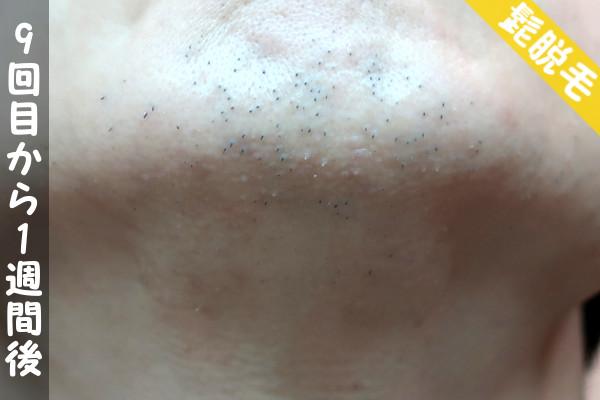 脱毛器ケノンで髭9回目の脱毛から1週間後の顎下の状態