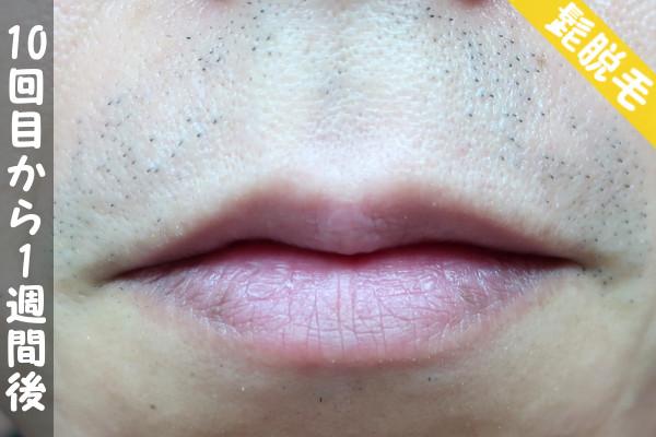 脱毛器ケノンで髭10回目の脱毛から1週間後の鼻下・顎の状態
