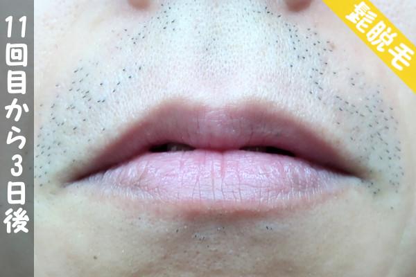 脱毛器ケノンで髭11回目の脱毛から3日後の鼻下・顎の状態