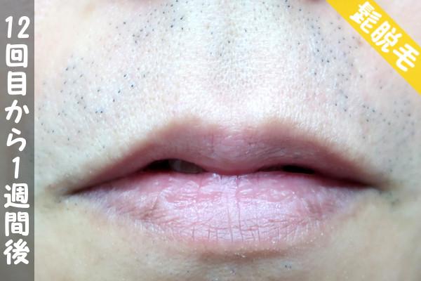 脱毛器ケノンで髭12回目の脱毛から1週間後の鼻下・顎の状態