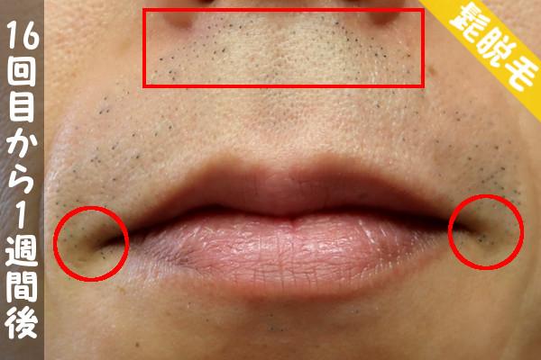 脱毛器ケノンで髭16回目の脱毛から1週間後の鼻下・顎の状態