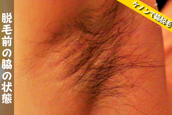 ケノンで脇脱毛前の状態