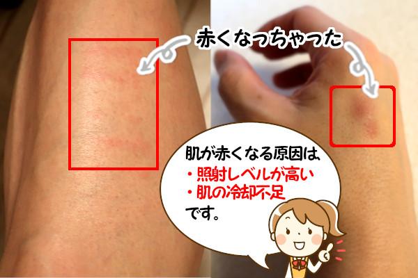 脱毛器ケノンの使い方を間違えると肌への負担が大きくなる