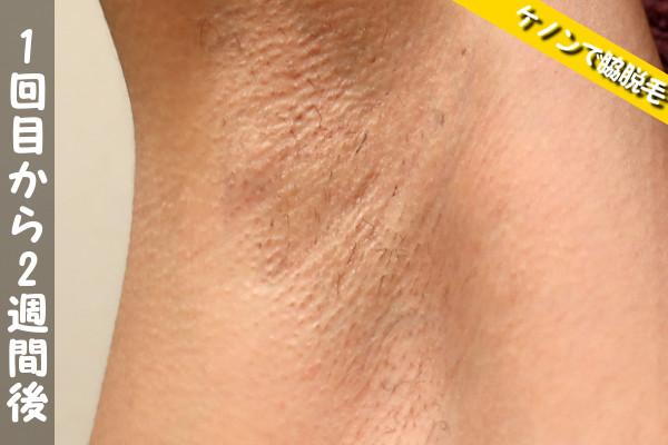 脱毛器ケノンで脇1回目の脱毛から2週間後の状態