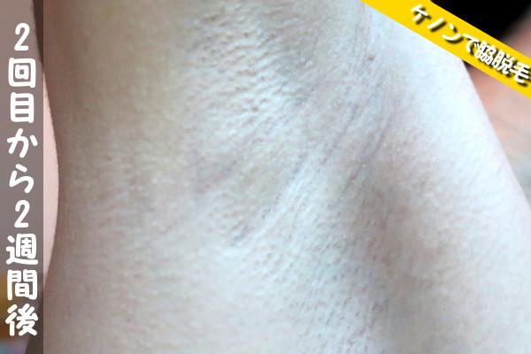 脱毛器ケノンで脇2回目の脱毛から2週間後の状態