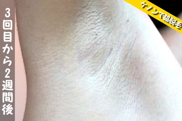 脱毛器ケノンで脇3回目の脱毛から2週間後の状態