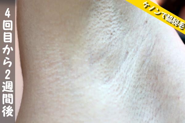 脱毛器ケノンで脇4回目の脱毛から2週間後の状態