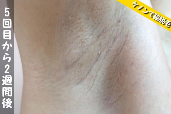 脱毛器ケノンで脇5回目の脱毛から2週間後の状態