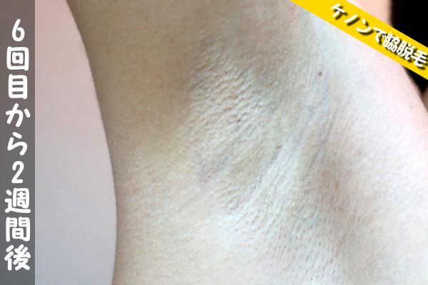 脱毛器ケノンで脇6回目の脱毛から2週間後の状態