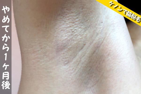 脱毛器ケノンで脇の照射をやめてから1ヶ月後