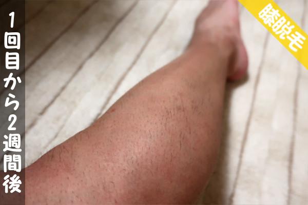 ケノン脱毛1回目から2週間後の膝下の状態