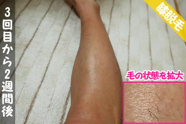 ケノン脱毛3回目から2週間後の膝下の状態