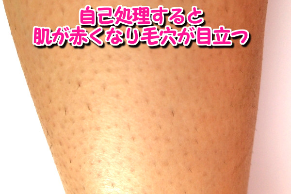 自己処理を続けると肌が赤くなり毛穴が目立つ