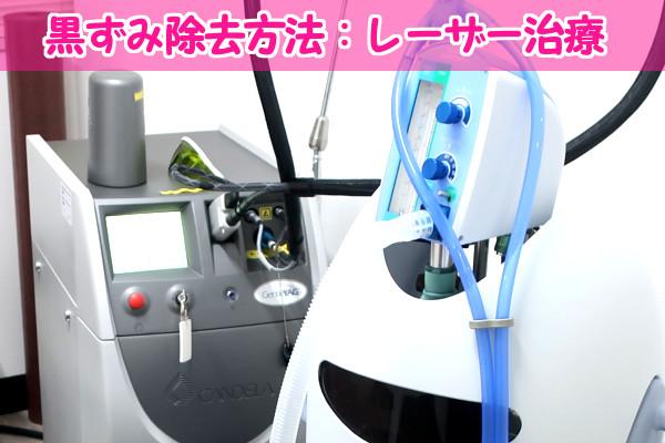 iラインの黒ずみ除去方法の1つ、レーザー治療