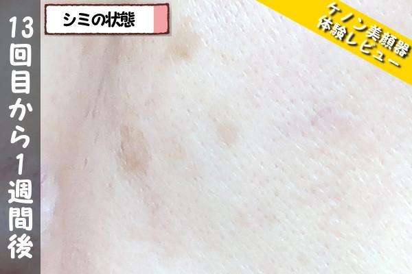 ケノン美顔器の13回目使用から1週間後のシミの状態