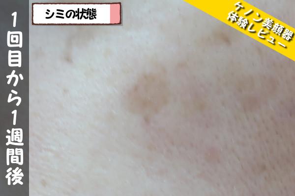 ケノン美顔器の1回目使用から1週間後のシミの状態