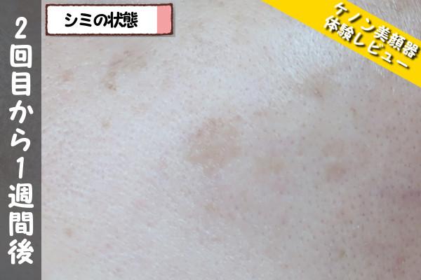 ケノン美顔器の2回目使用から1週間後のシミの状態