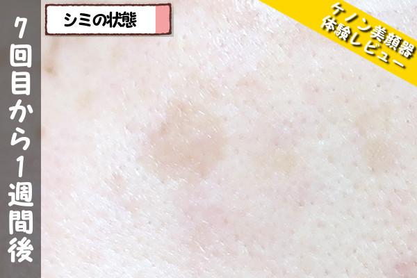 ケノン美顔器の7回目使用から1週間後のシミの状態