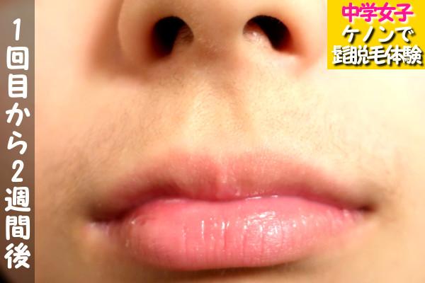 脱毛器ケノンの1回目使用から2週間後の髭・鼻下・口周りの状態