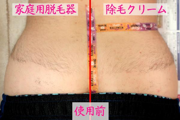 家庭用脱毛器と除毛クリームの毛の生え方の違いを検証【検証前の毛の状態】