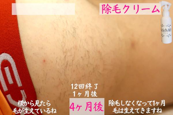 家庭用脱毛器と除毛クリームの毛の生え方の違いを検証【検証4ヶ月後の状態】