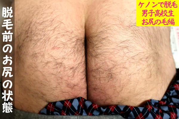 【男子高校生】ケノンでお尻の毛(けつげ)の脱毛前の状態