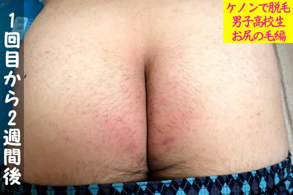 【男子高校生】ケノン1回目の尻毛脱毛から2週間