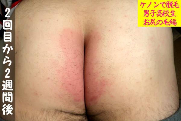 【男子高校生】ケノン2回目の尻毛脱毛から2週間