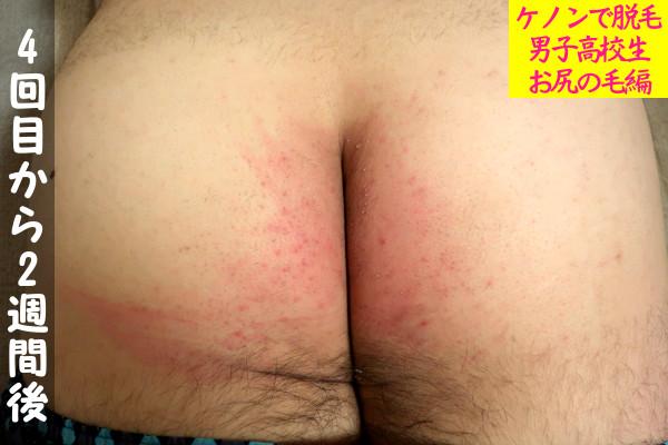 【男子高校生】ケノン4回目の尻毛脱毛から2週間