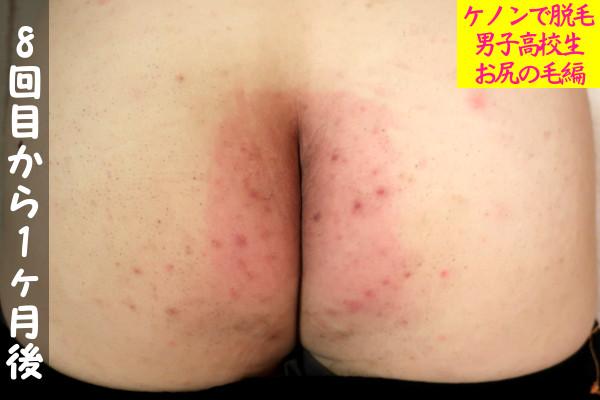 【男子高校生】ケノン8回目の尻毛脱毛から1ヶ月