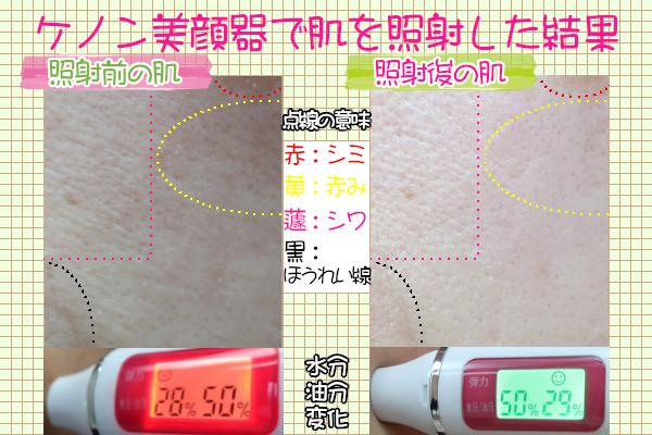 ケノン美顔器で透明感のあるぷるんぷるんの肌になるか効果を検証