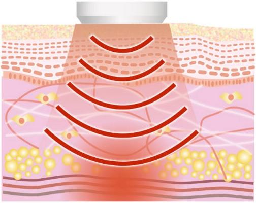 リボーンプラスは高周波(RF)でインナーマッスルを刺激する