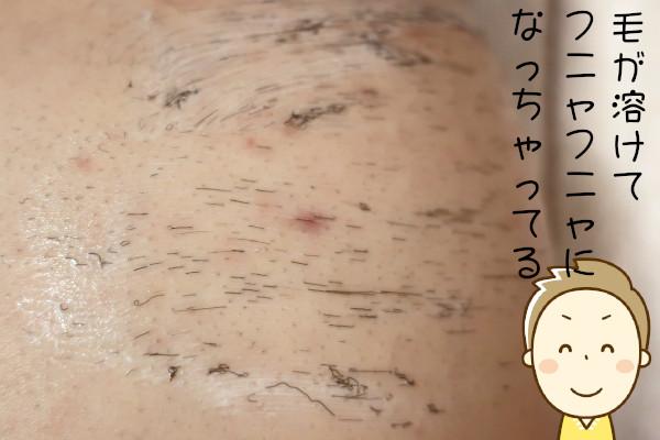 除毛剤は毛を溶かして処理する