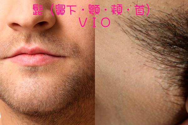 ケノン眉毛脱毛器は髭・VIOに使える