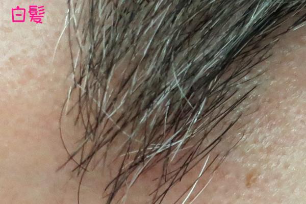 ケノン眉毛脱毛器は白髪に使える