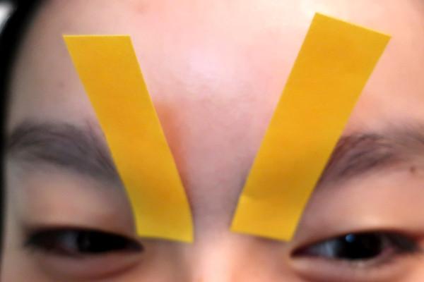 ケノンで眉間を脱毛する前に眉毛をテープで保護する