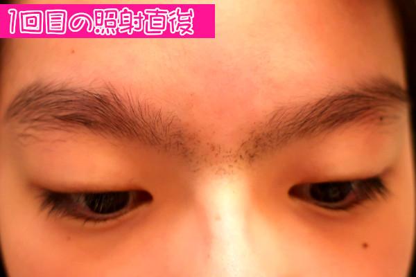 【体験レビュー】ケノンで眉間脱毛前直後の状態