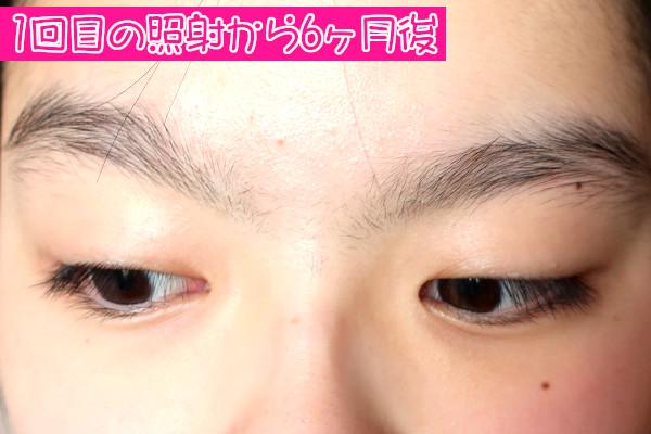 【体験レビュー】ケノンで1回目の眉間脱毛から6ヶ月後