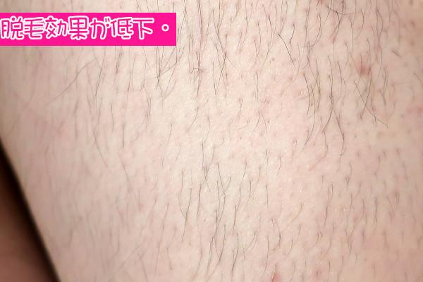 毛を剃らないいとケノンの脱毛効果が低下するかも