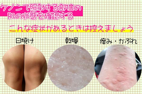 ケノンを使用する前には肌の状態を確認する