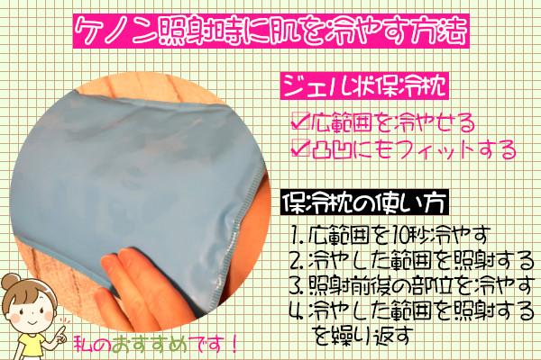 ケノン照射時にジェル状保冷枕を使って冷やす