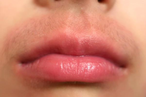 女性の鼻の下・口周りの産毛の状態