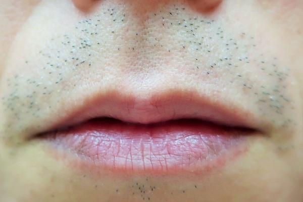 男性の髭脱毛前の状態